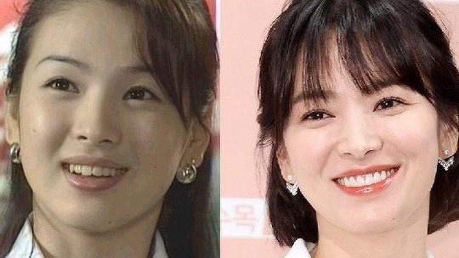 Cựu thần tượng Kpop tiết lộ quá trình làm răng của sao Hàn