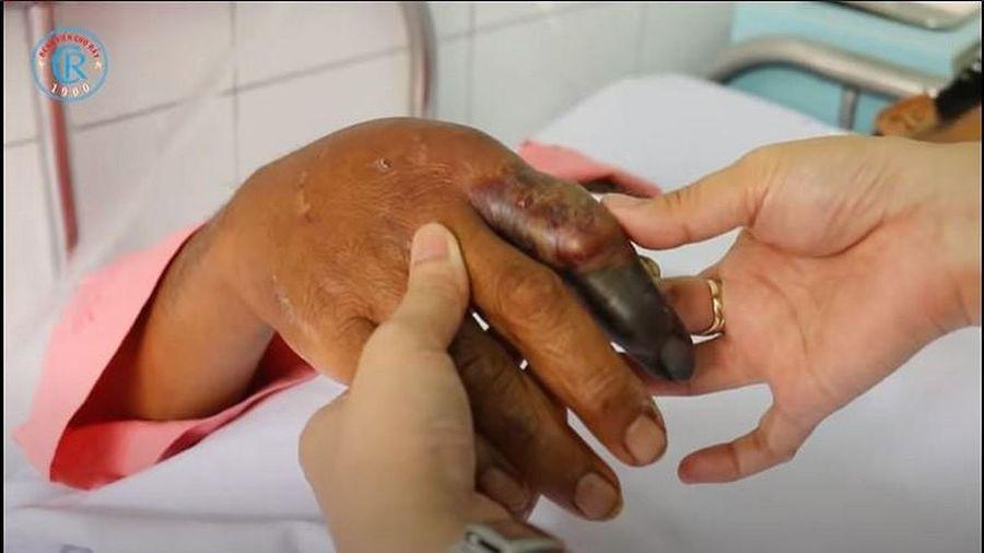 Thêm một trường hợp bị rắn hổ mang chúa cắn gây biến chứng nguy hiểm