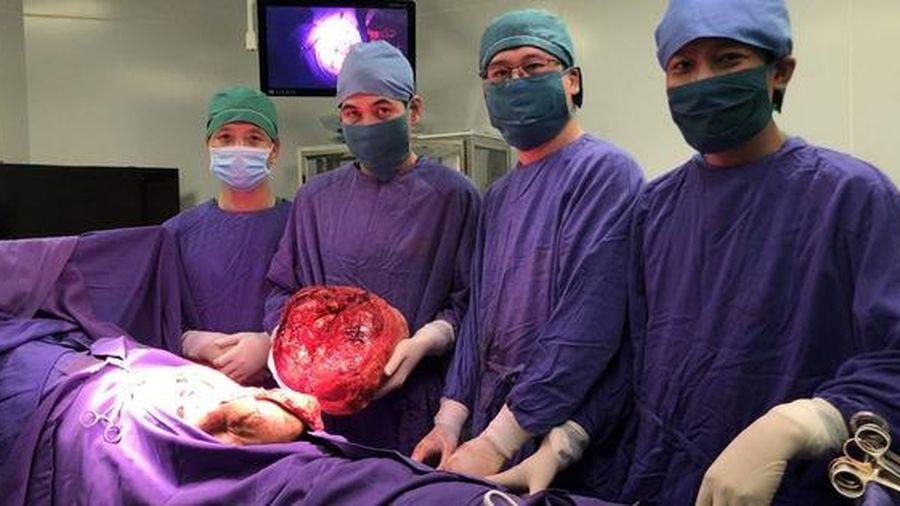 12 lần phẫu thuật, người đàn ông được loại bỏ khối u khổng lồ