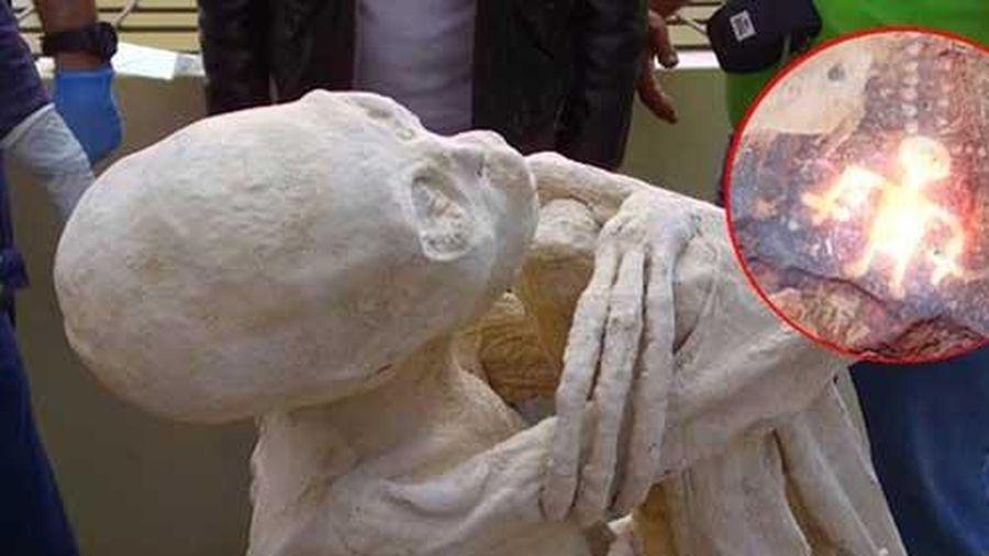 Bí ẩn giật mình về xác ướp chỉ có 3 ngón tay
