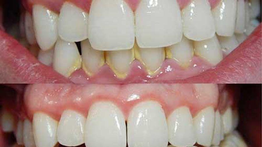 Chỉ cần dành 3 phút buổi tối làm điều này, cả đời chẳng phải đến nha sỹ lấy cao răng