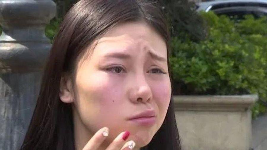 Cô gái Trung Quốc bị méo mặt sau khi tiêm chất làm đầy