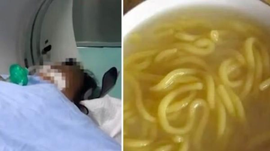 Ăn mỳ để trong ngăn đá tủ lạnh một năm, cả gia đình 9 người bị ngộ độc, không ai qua khỏi