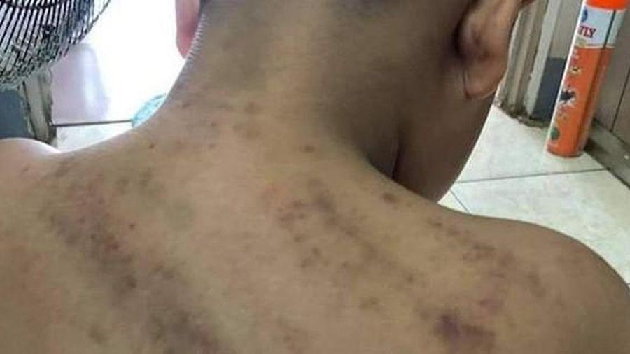 Nhiều vết bầm trên lưng, cổ bé trai 8 tuổi ở Phú Quốc nghi bị đánh