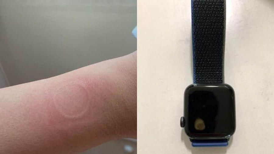 Apple Watch quá nhiệt gây bỏng tay người dùng