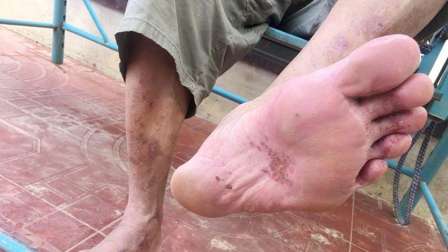 Những đôi chân ứa máu của người dân vùng lũ