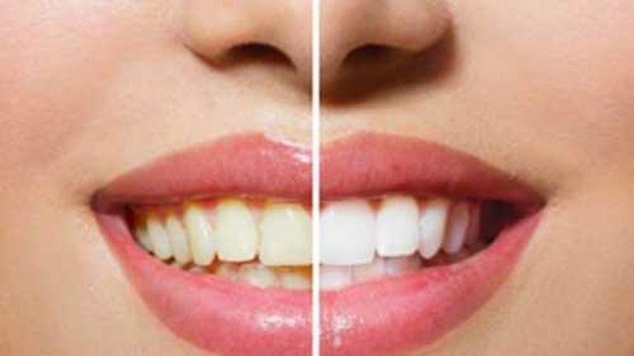 Cách đánh bay vết ố vàng trên răng ngay tại nhà bằng nguyên liệu hoàn toàn tự nhiên