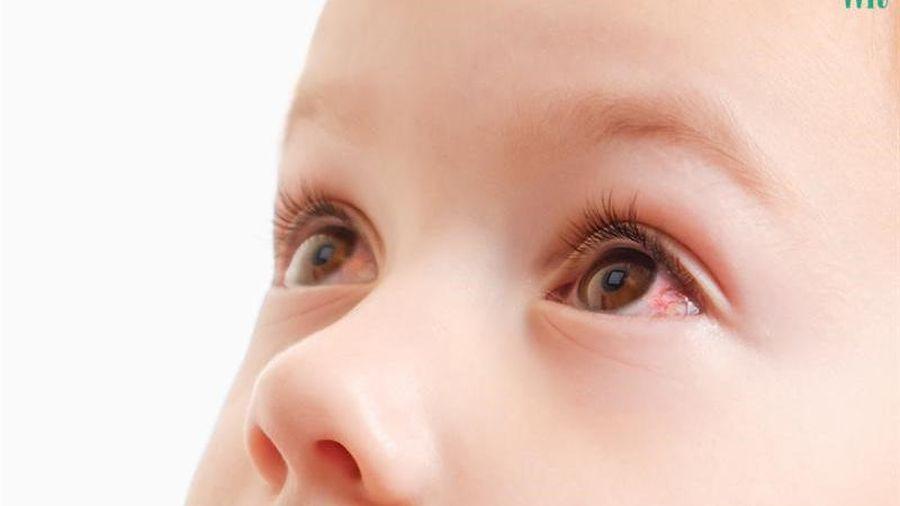 Những con đường lây nhiễm đau mắt đỏ: Nhìn vào mắt người bị đau mắt đỏ có lây không?
