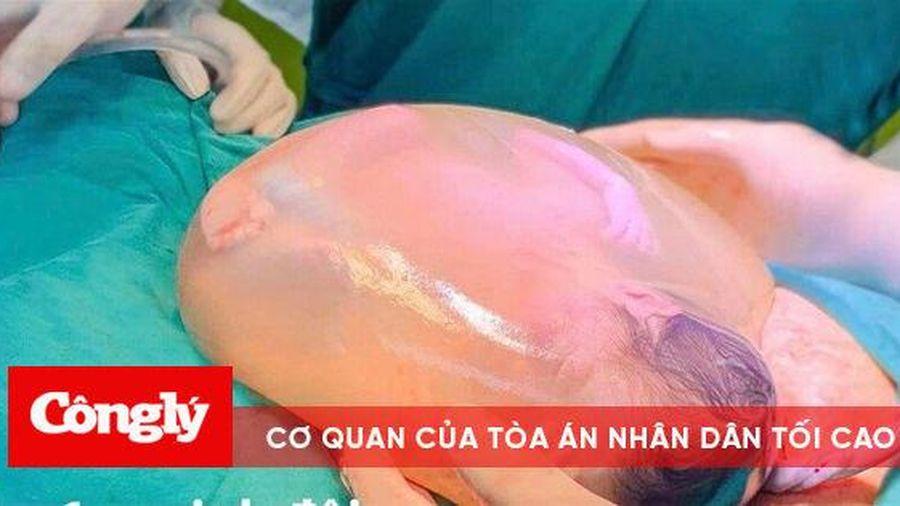 Một trong hai bé gái song sinh chào đời còn nguyên trong bọc ối