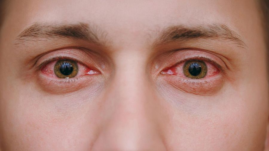 Sự khác biệt giữa đau mắt đỏ và viêm loét giác mạc không phải ai cũng biết