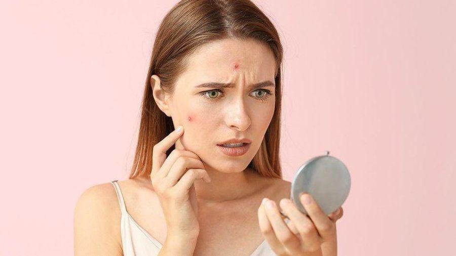 6 thực phẩm khiến làn da của bạn xấu đi