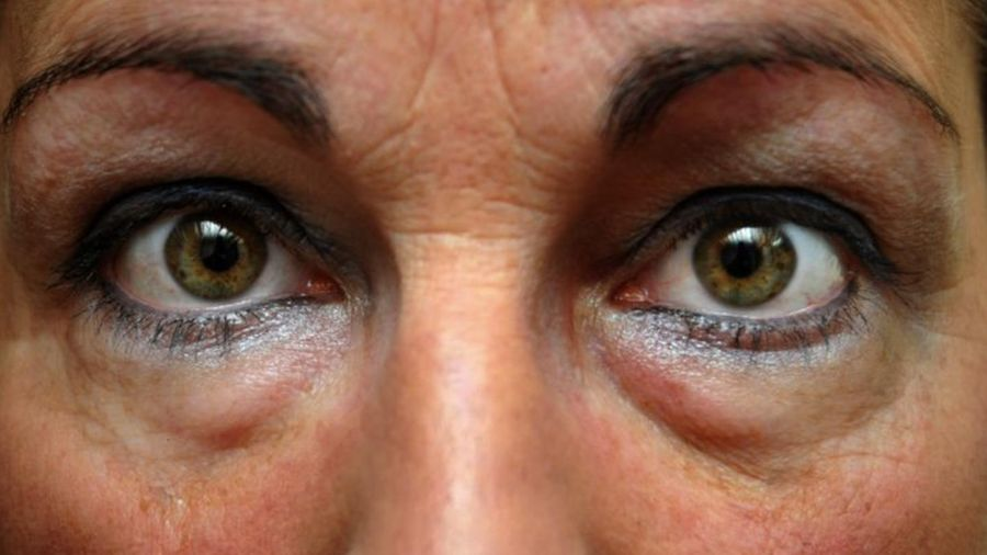 6 bước tiêu diệt mắt 'gấu trúc'