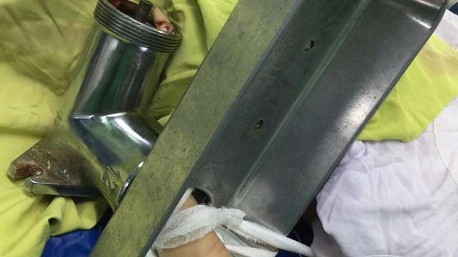 Gần 60 phút phẫu thuật cứu bàn tay bị máy xay thịt nghiền nát