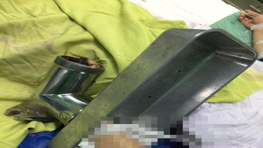 Người phụ nữ 'bồng' máy xay thịt vào bệnh viện cấp cứu