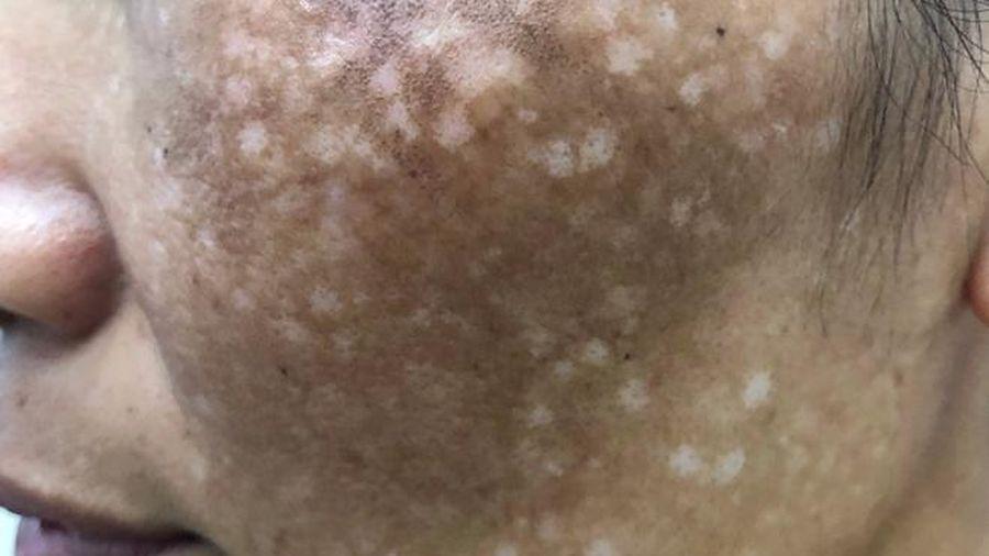 Người phụ nữ bị tai biến vì trị nám ở spa