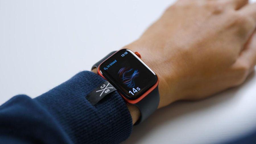 Apple muốn lắp pin vào dây đeo của Apple Watch