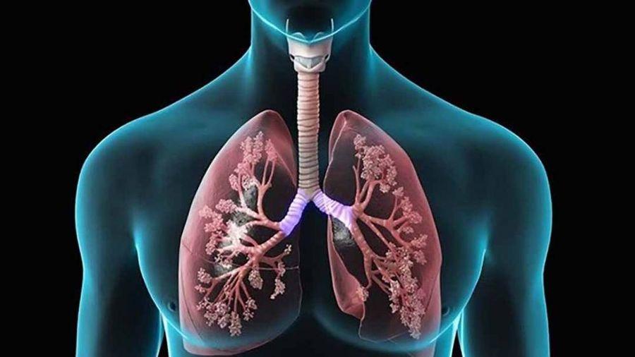 Dấu hiệu và cách phòng chống bệnh lao phổi
