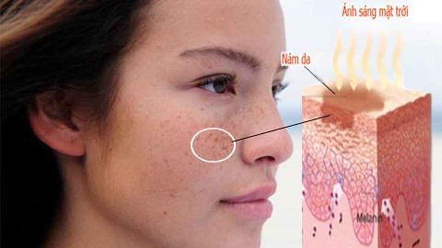 Cần làm gì khi bị rối loạn tăng sắc tố da mặt?