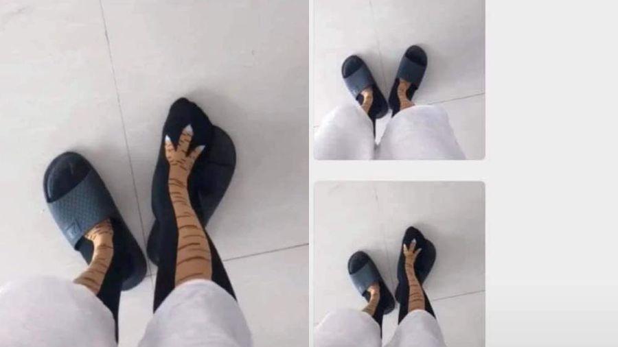 Cô gái chụp đôi chân 'gầy đáng sợ' khiến dân tình xót xa, khi biết sự thật ai cũng cười bò