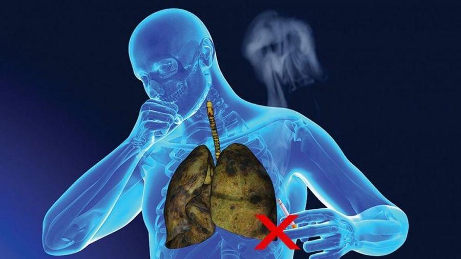 Hút thuốc lá gây ung thư phổi như thế nào?