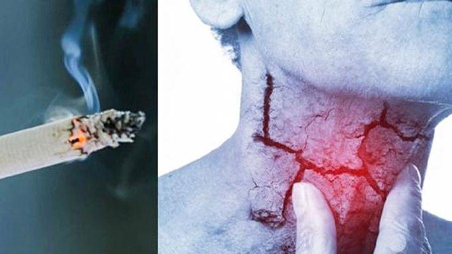 Phòng ngừa ung thư vòm họng: Không sử dụng thuốc lá