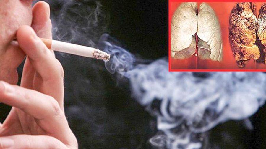 Ung thư phổi phần lớn do hút thuốc lá