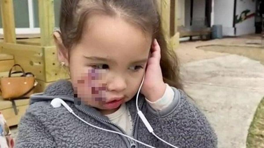 Nhói lòng câu nói của bé gái 3 tuổi sau trận tấn công kinh hoàng của chó pit bull