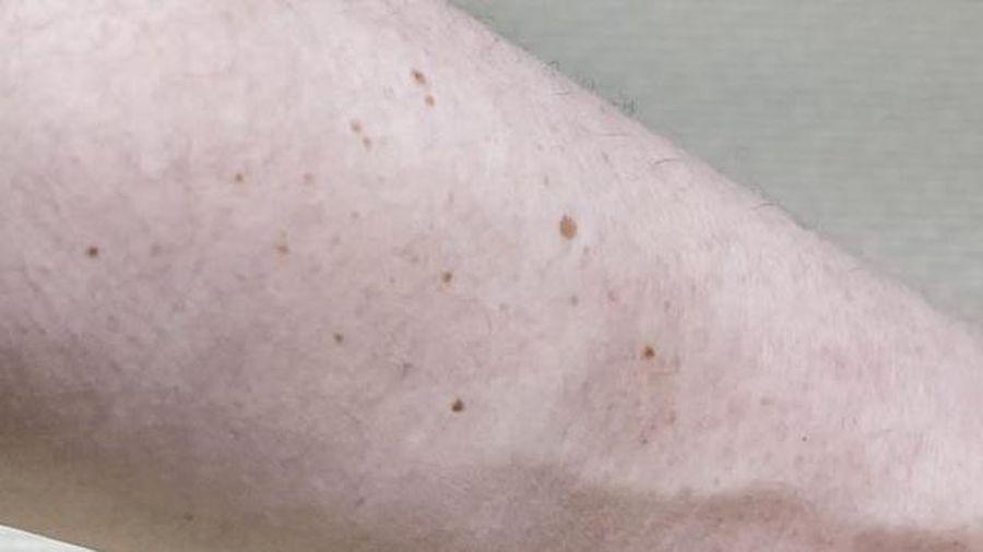Người có nhiều nốt ruồi tốt hay xấu?