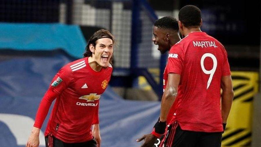 MU phải loại Cavani đấu Liverpool, chuyên gia dự đoán hòa 1-1