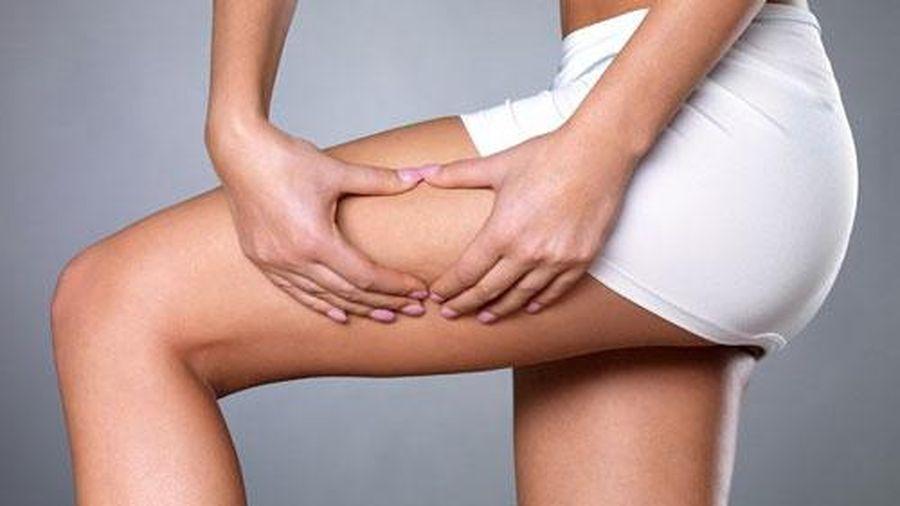 Rạn da và cách ngăn ngừa hiệu quả