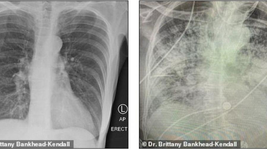 Sốc về mức độ tàn phá của Covid-19 đối với phổi