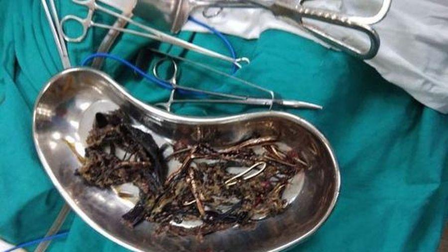 Thanh niên ở Bình Dương thích ăn kim loại: Bác sĩ lý giải nguyên nhân