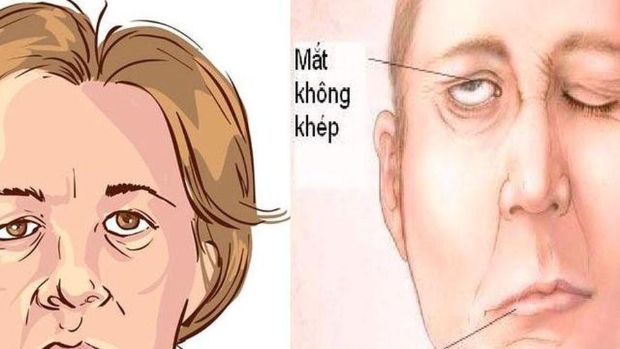 Bệnh nhân liệt mặt, méo miệng ngày lạnh tăng vọt, phòng tránh cách nào?