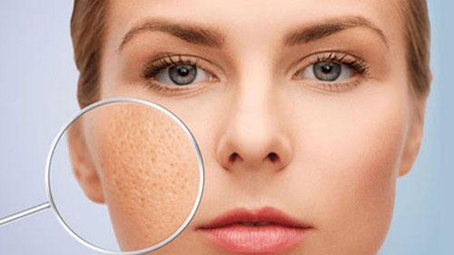 4 cách khắc phục tình trạng lỗ chân lông to, giúp da sáng mịn, tự tin đón Tết