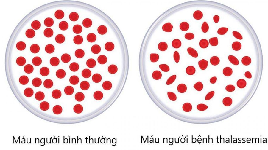 Làm thế nào để phát hiện sớm gene bệnh tan máu bẩm sinh?