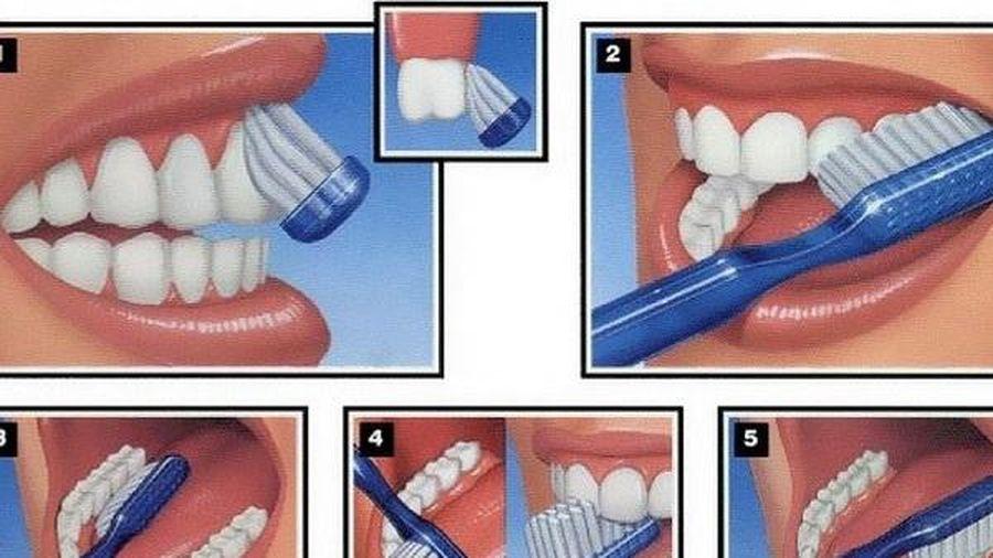 Đối phó với sâu răng