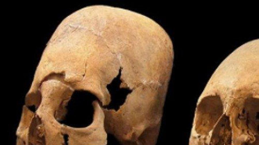 Giải mã phong tục tàn bạo đập sọ người chết từ thời đồ đá