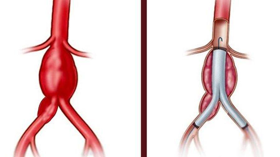 Cứu bệnh nhân vỡ phình động mạch chậu chung nguy hiểm tính mạng