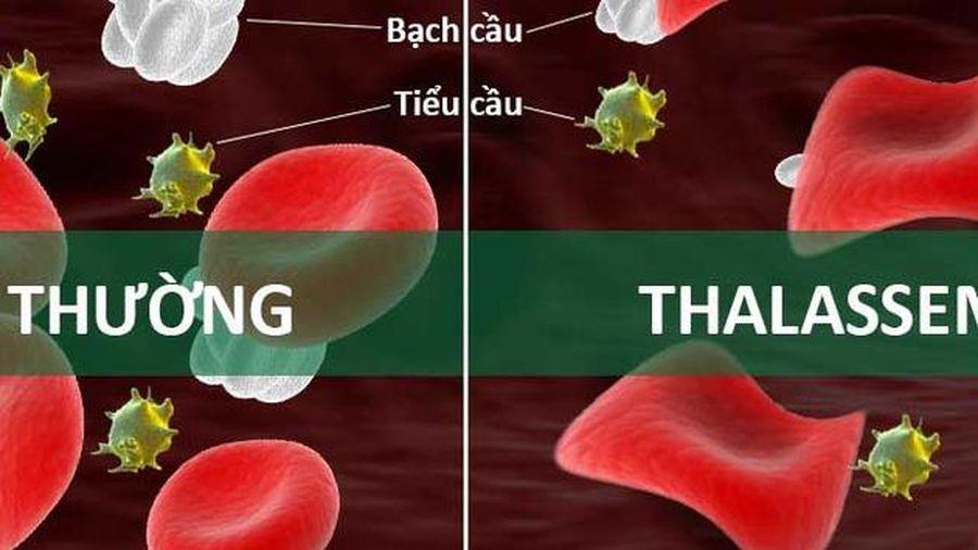 Nguyên nhân và triệu chứng của bệnh tan máu bẩm sinh