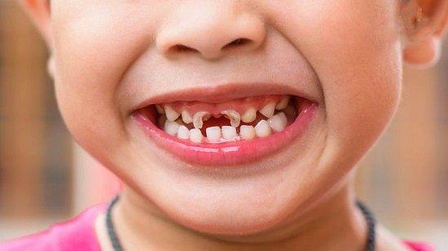 Ảnh hưởng của sâu răng sữa