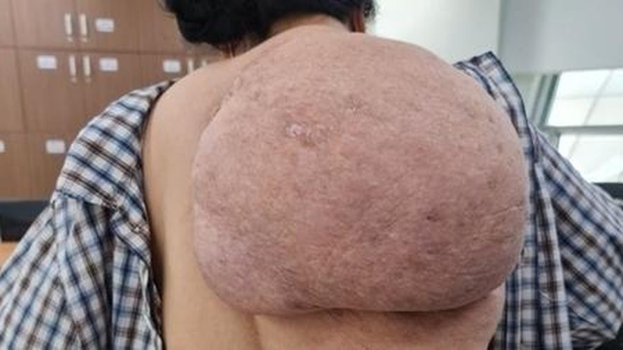 Người phụ nữ đeo khối u khổng lồ trên lưng 30 năm