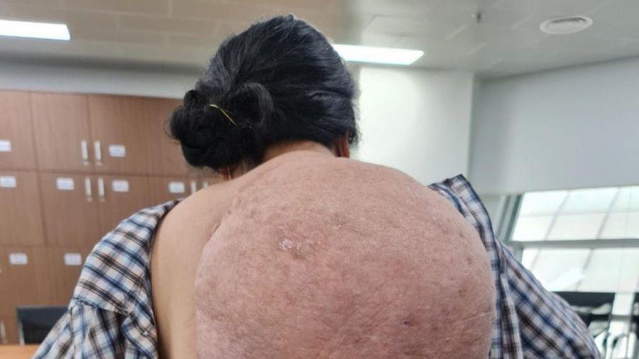 Người phụ nữ 53 tuổi gánh trên vai khối u khổng lồ
