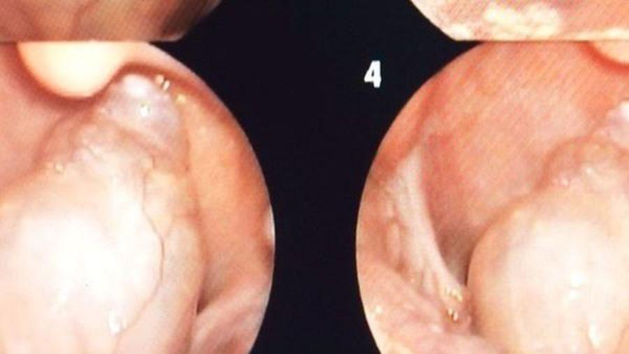 Phẫu thuật kịp thời khối u lớn vùng hạ họng hiếm gặp ở bệnh nhi 7 tuổi