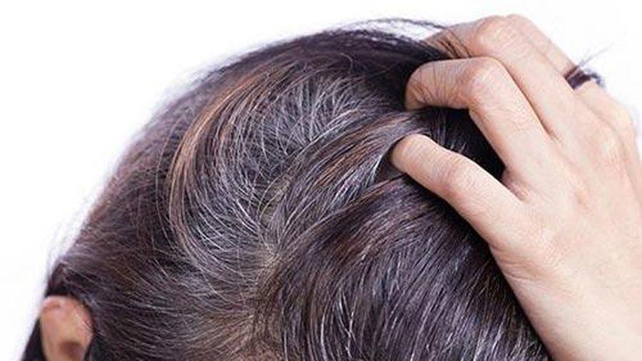Đây là lý do khiến tóc bạc sớm