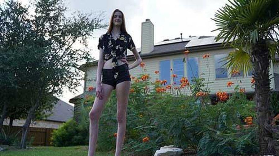 Người phụ nữ sở hữu cặp chân dài nhất thế giới