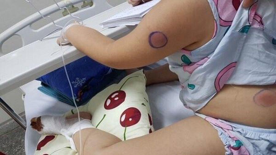 Bị gà mổ vào chân, bé gái bị nhiễm vi khuẩn ăn thịt người