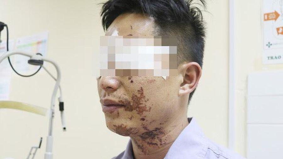 Người đàn ông bị bỏng vùng mặt do nổ bình gas mini lúc ăn lẩu