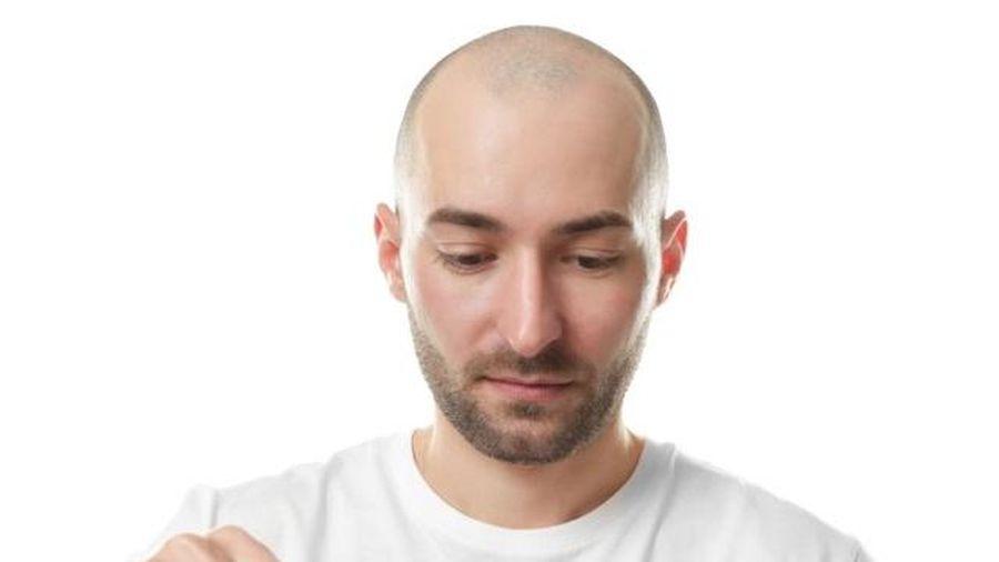 Phương pháp tái tạo tóc cho người hói