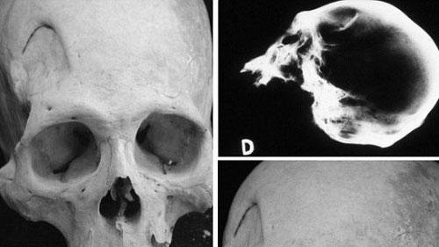 Khảo cổ học tìm thấy xương cổ đại minh chứng quá trình phẫu thuật não nguyên thủy