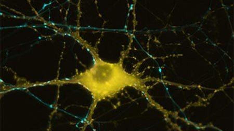 Phát hiện cách bộ não tạo ra ký ức
